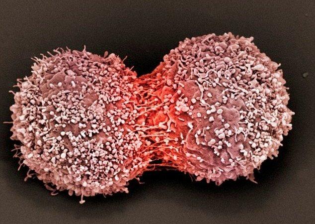 英研究:辨識「癌症要害」 打造客製化癌症療法