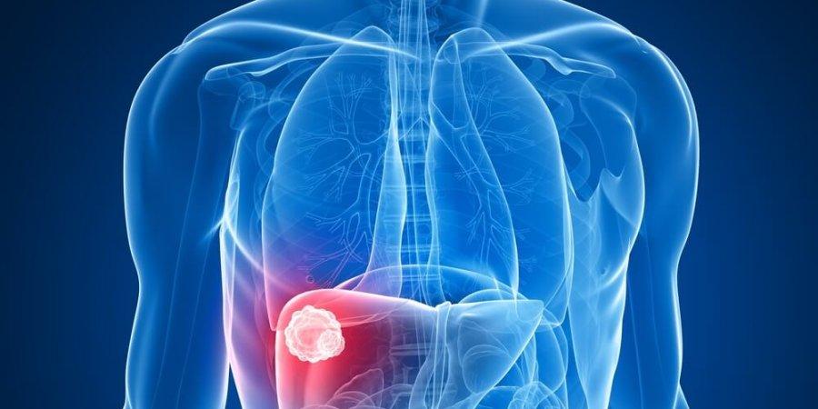 拖延治療C肝 增肝外疾病風險及罹癌死亡率