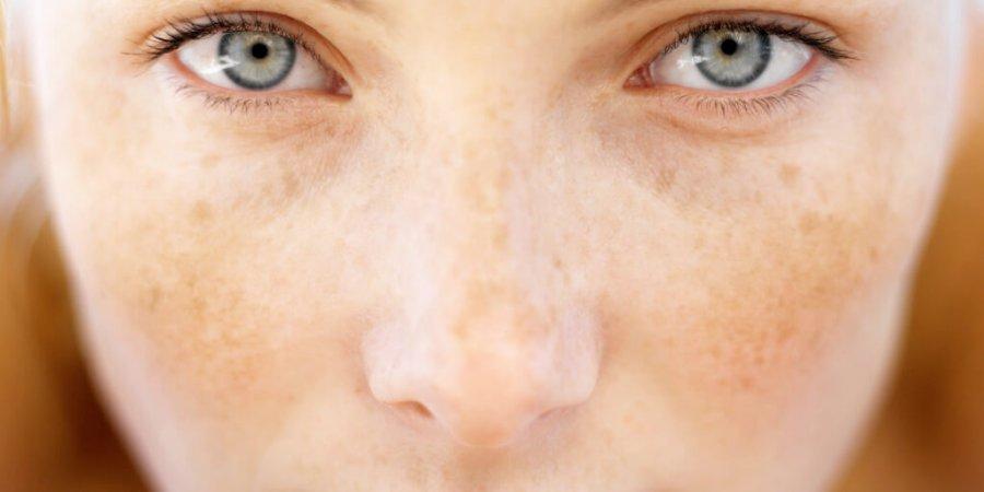 是癌不是斑! 斑點愈來愈隆起竟是皮膚癌