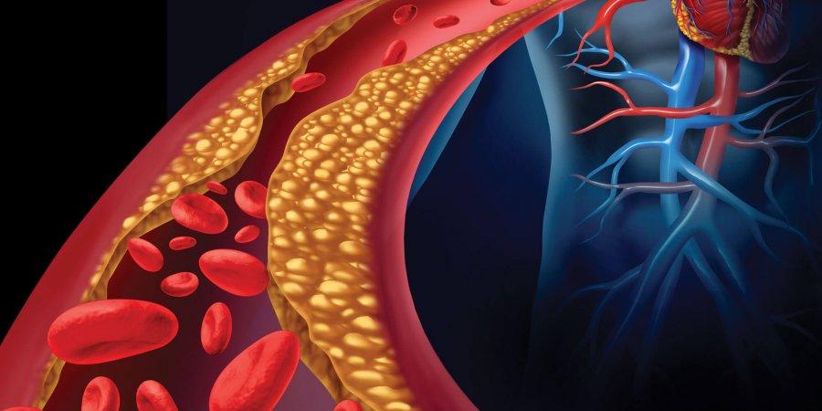 血管支架 主動脈瘤微創新療法