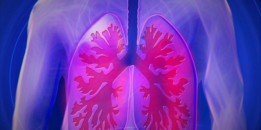 初期診斷是肺炎,但為何最後卻變成了肺癌?