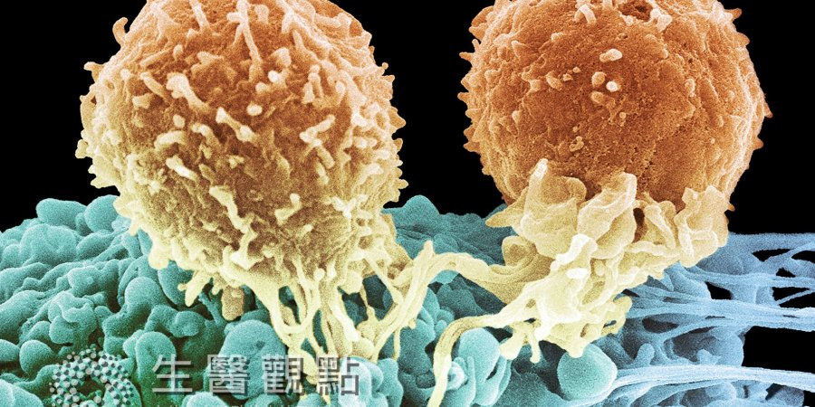 白血病新興療法 禁食可以餓死癌細胞?