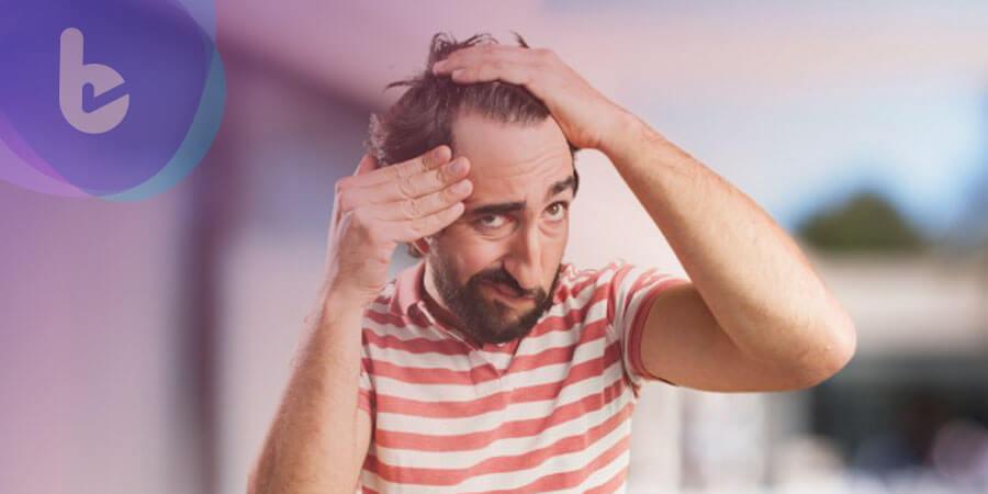 異常掉髮迷思多 看錯科當心沒髮度