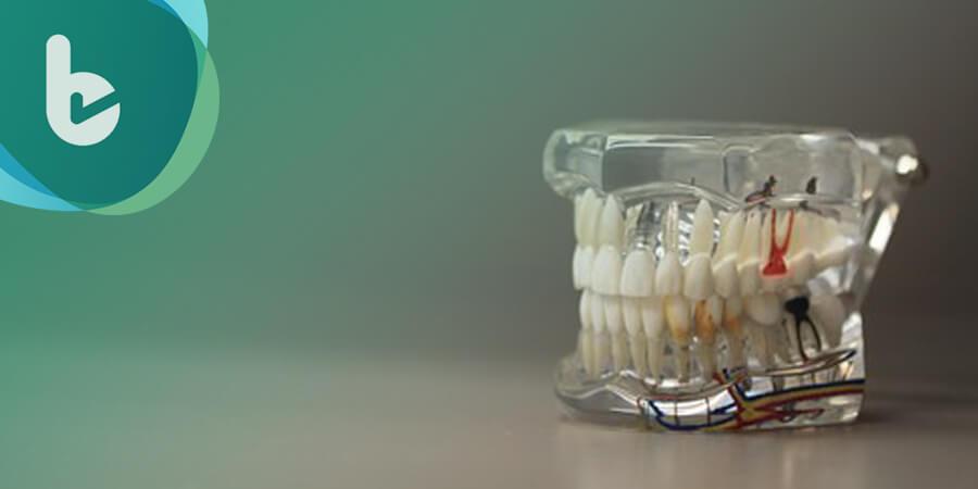 植牙也要精準!? 醫師透露關鍵