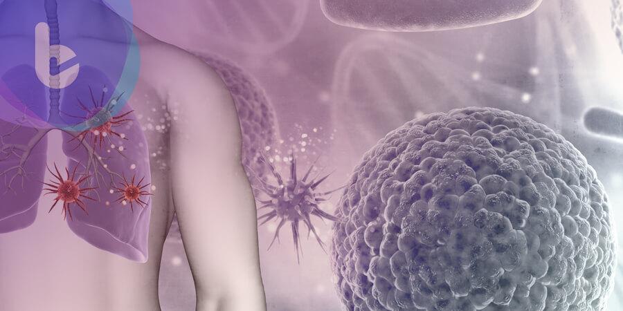 新選擇!EGFR晚期肺癌一線雙標靶可延緩腫瘤惡化