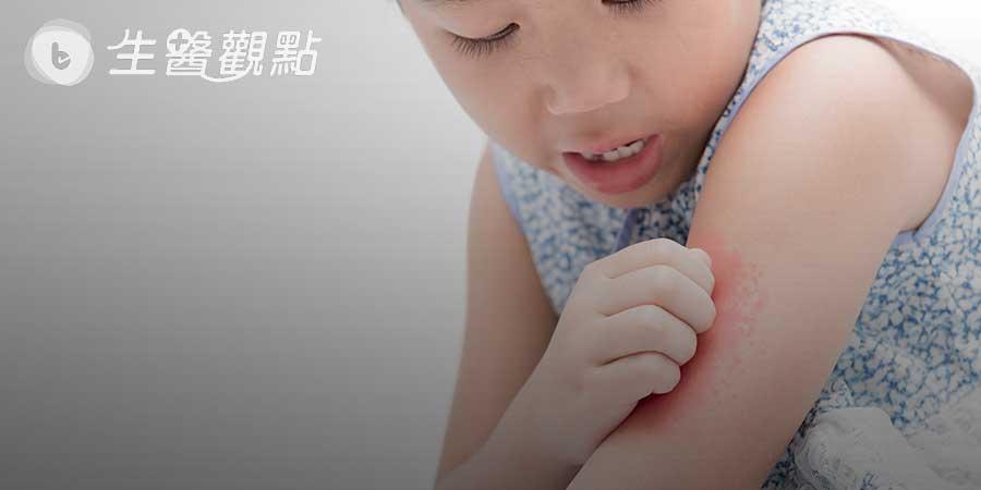 紅斑性狼瘡有什麼症狀?會遺傳嗎?