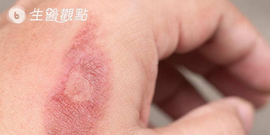 痘疤燒燙疤有救 醫學雷射UP再升級